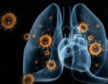 道达尔拒绝中国买家以新冠肺炎疫情作为<em>不可抗力</em>免责